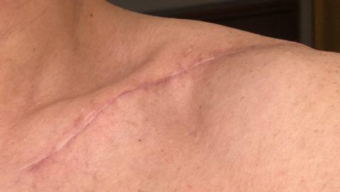 鎖骨骨折手術傷跡