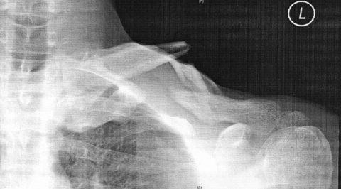 鎖骨骨折レントゲン写真